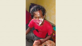 कोरोना संक्रमित माथि प्रहरीको निर्मम कुटपिट, ३२ दिनमा पनि आएन रिपोर्ट, बास सडकमा